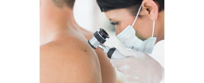 Skin Cancer Assoc Prof Dr Onur Egemen